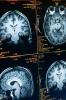 Photo: Brain images